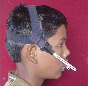 Head-Gear als Alternative der Krankenkasse